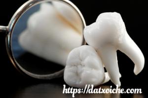 Mọc răng khôn có ý nghĩa gì, điềm báo gì?